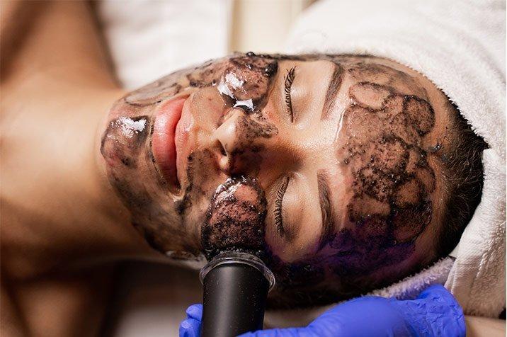 oxygeneo-face-treatment